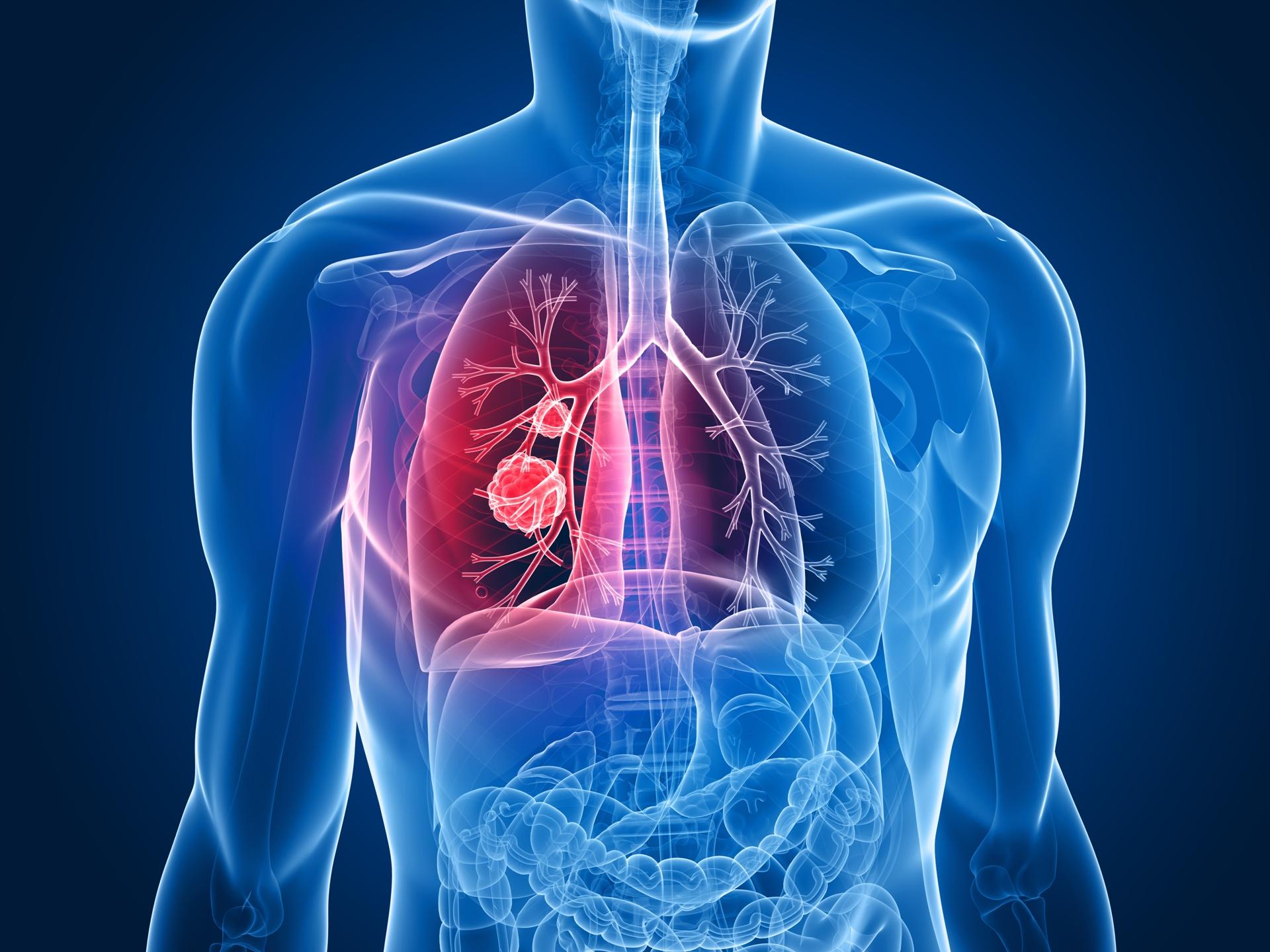 Hospital Integrado do Câncer Mater Dei faz investimentos no combate ao câncer de pulmão